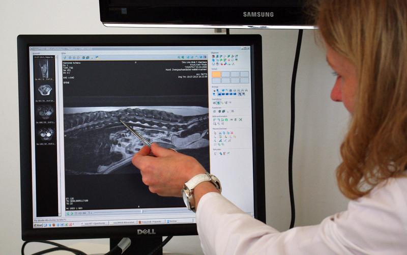 Auf der kernspintomographischen Aufnahme gut zu erkennen: PD Dr. Veronika Stein zeigt die Stelle, wo die Bandschreibe vorgefallen ist