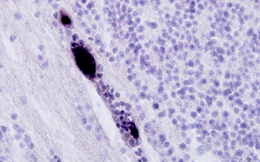 Mit Hilfe der RNA-Färbemethode werden bestimmte Entwicklungsstadien der Plasmodien in schwarz sichtbar