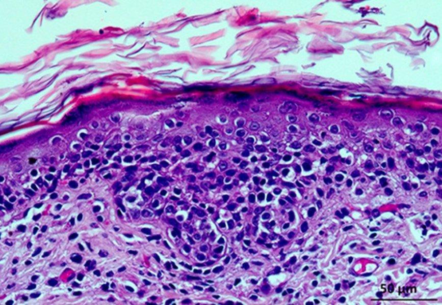 Abbildung 3. Histologisches Bild  der Hautläsion. A H&E Färbung.  B Immunhistologisches Bild (CD3) der Hautläsion