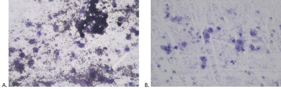 Abbildung  2: Zytologie eines Feinnadelaspirates der Hautläsion eines Hundes vor (A) und nach der Zugabe von Immersionsöl (20 x Vergrößerung, Hämacolor Färbung)