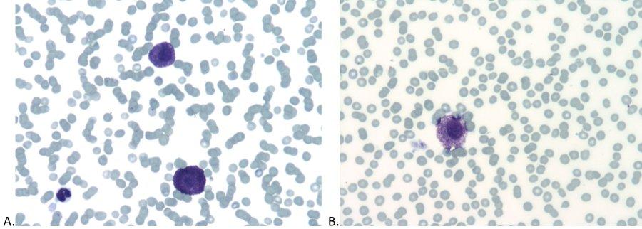 Abb 2. Blutausstrich eines Katers mit multiplen Hautknoten (A, B) (Wright-Giemsa, 500-fache Vergrößerung).