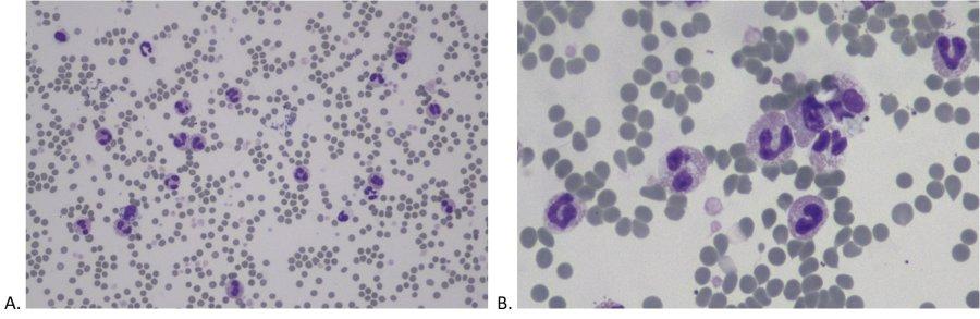 Abb 1. Befunde der morphologischen Untersuchung des Blutausstrichs eines 12-jährigen EKH Katers (Hemacolor Färbung, 20x Objektiv (A), 50x Objektiv (B).
