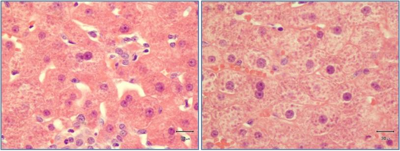 Abbildung 3 A, B: Histologisches Bild der Leber eines Pferdes mit Jakobkreuzkraut-Vergiftung. Die Leberzellen zeigen sich teilweise vergrößert mit wenigen doppel- und vielkernigen Zellen (H&E, 1000-fache Vergrößerung).