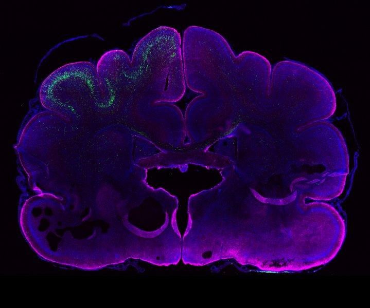 Das Bild zeigt das sich entwickelnde Gehirn eines Frettchens. Magenta markiert Gliazellen und zeigt deutlich die äußere Kontur des Gehirns. Der grüne Bereich enthält Neurone, die ARHGAP11B enthalten.